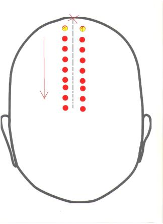 tył głowy opukiwanie